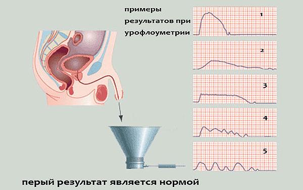 penis dufter af urin